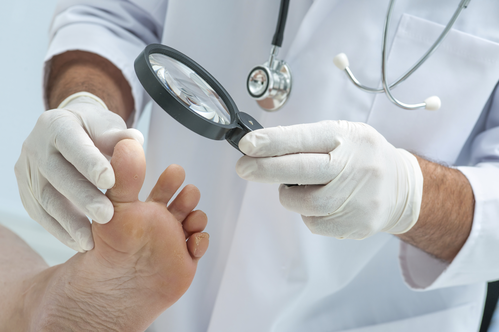 dermatologist examines the foot on the presence of athlete's foot