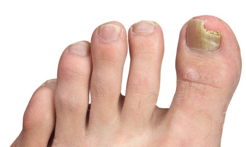 Dangers of ingrown toenails | Canadian Podiatric Medical Association