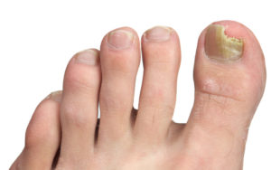 How To Treat (And Prevent) Ingrown Toenails – Canadian Podiatric ...