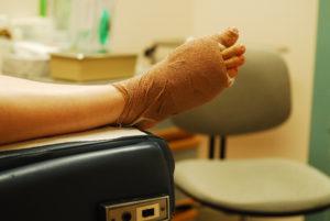 foot-injure