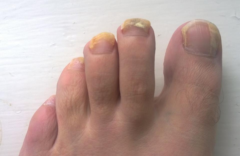 fungal-nail